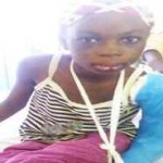 CHILD ABUSE! Stepmother Tortures10-Year-Old Girl With Fire In Gombe (See Photo)