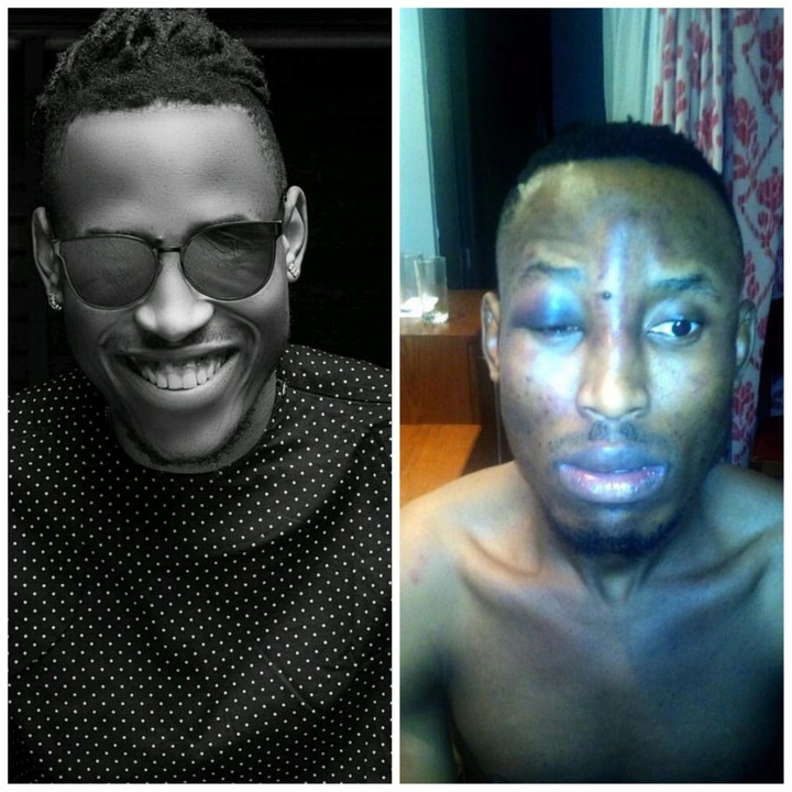 Singer Mr. 2kay Robbed At Gun Point In Lagos Hotel Room, His Arms, Legs & Mouth Tied