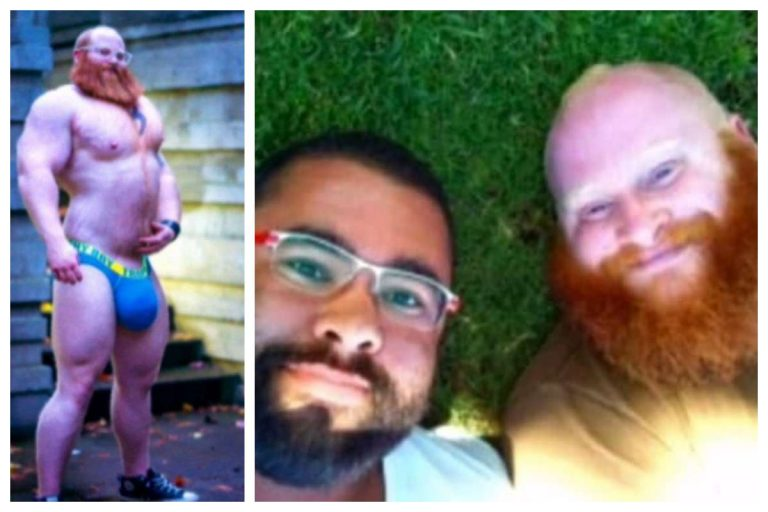 28-Year-Old Gay Man Dies After Injecting Silicone Into His Balls In US (Photos)