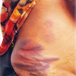 Pregnant Woman Sustained Injury After A Lagos Chief Flogged Her Mercilessly (Photo)