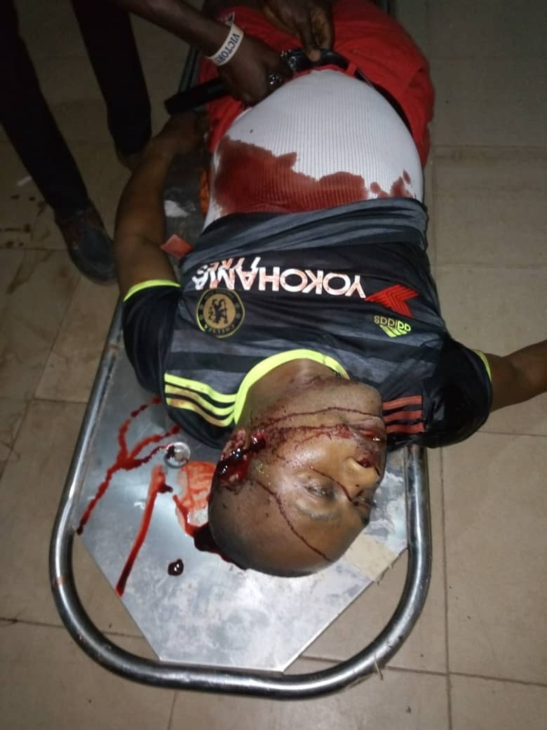 APC Chieftain Shot Lifeless In Ekiti (Graphic Image)