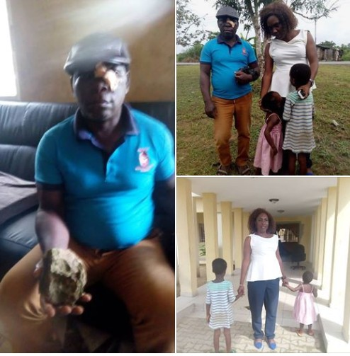 Man Who Tried To Rescue Kids From Being Beaten, Injured By Their Mother (Photos)