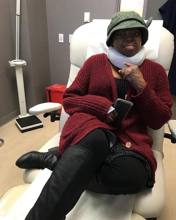 #ViralNow: Sosoliso Plane Crash Survivor & Singer, Kechi, Undergoes Another Surgery (Photos) 4