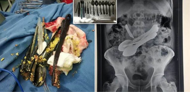 Doctors Remove Knife, Spoons, Screwdrivers, Toothbrushes From Man's Stomach
