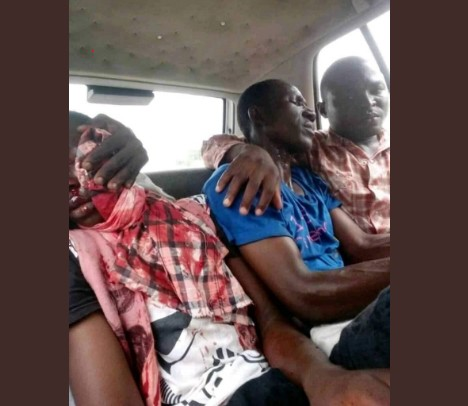 Channels TV Journalist Shot As Police Clash With Shiites In Abuja (Photo)